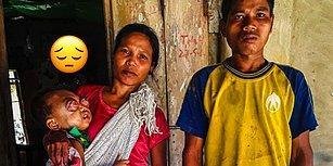 Ne Acılar Var: 2 Yaşındaki Bebek Yakalandığı Göz Kanserinden Tedavi Olarak Kurtulmayı Bekliyor!