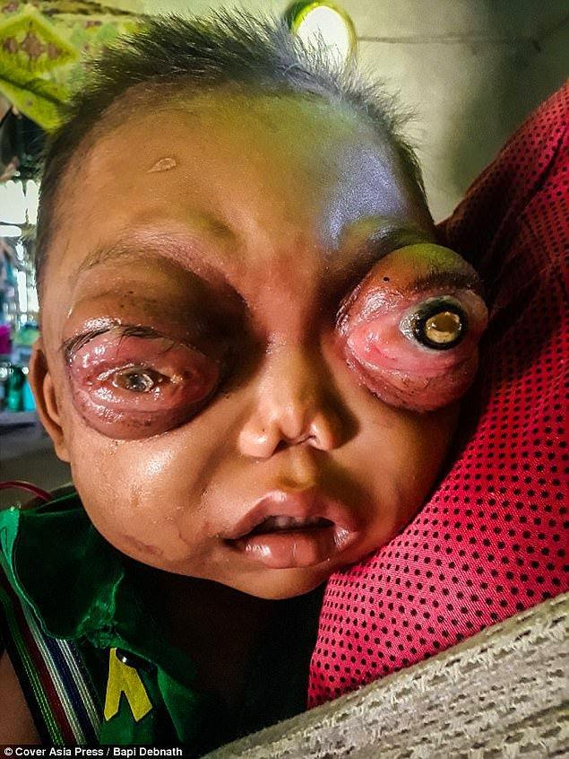 Hindistan'ın kırsal kesiminde yaşayan Jailian, sürekli acı içinde ve acilen tedaviye ihtiyacı var!