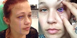 Yaptırdığı Dövme Sonrasında Gözünü Kaybetme Noktasına Gelen Kadın