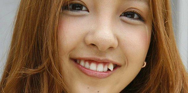 Küçük çeneli gençlerde süt dişleri dökülüp yerine gelen esas dişler yerleşecek yer bulamadığında bu tür çarpıklıklar oluşuyor.