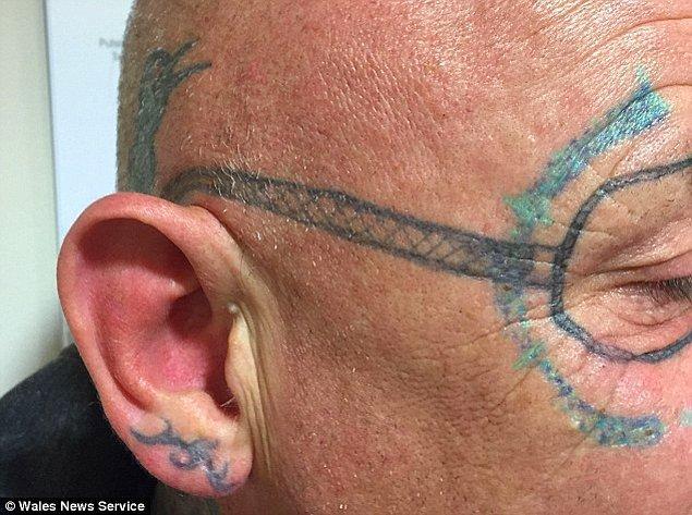 Kliniğe giderek dövmeyi sildirmeye başladı. İşlemlerden sonra yüzünde kalıcı olmayan turkuaz renkte kalıntılar vardı.
