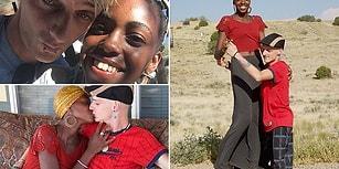 Nadir Görülen Fiziksel Bir Rahatsızlıkla Doğan Genç Adam Aradığı Aşkı İnternette Buldu!
