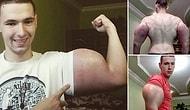 Rusya'da Kollarına Tehlikeli Kimyasal Enjekte Eden 21 Yaşındaki Vücut Geliştirme Sporcusu