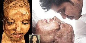 Aşk Kalıplara Sığmaz: Yüzüne Kezzap Atılan Hintli Kadın Hayatının Aşkını Hastanede Buldu