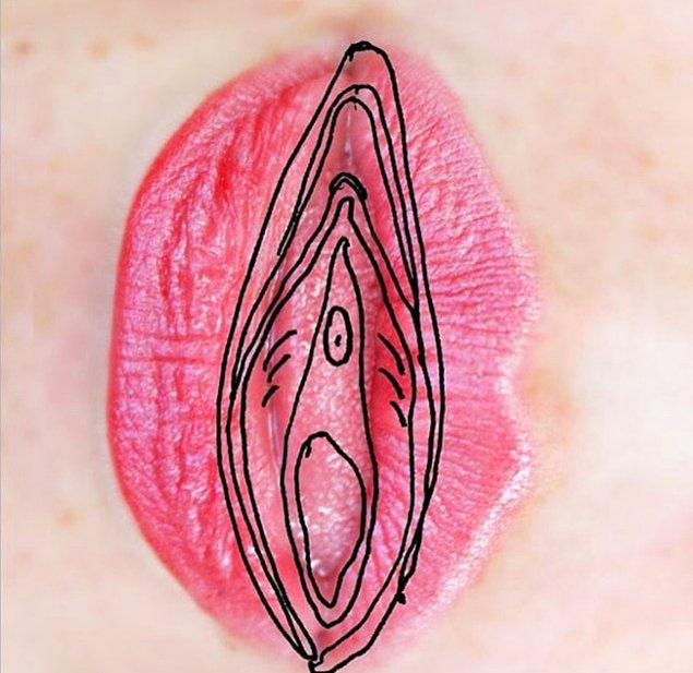 6. Ameliyatla oluşturulan vajinaya bakımın tek bir belli kuralı yoktur.