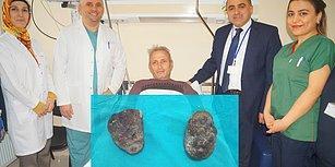 Son Hurmayı Yemeyecekti: Trabzon'da Ameliyata Giren Hastanın Midesinden 400 Gram Taş Çıktı