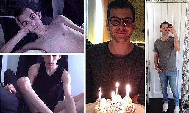 """9. """"Anoreksiyayı yenmemin üzerinden bugün tam 18 ay geçti."""""""