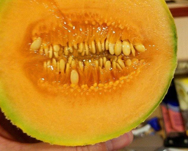 10. Sigara içmekten dişleri sararmış kavun