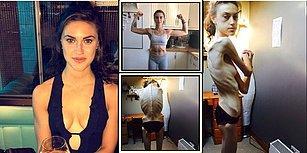 Anoreksiya Yüzünden 32 Kiloya Düşen Kadın, İlham Verici Instagram Hesaplarından Etkilenerek Hayata Döndü!