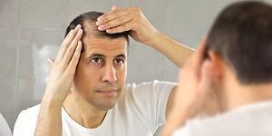 Saçları Dökülmeye Başlayan Her İnsanın Aklından Geçen 11 Düşünce