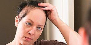 Dünyanın En Zor Hastalıklarından Birine Sahip Olan Kadın Her Gün Saçlarını Yoluyor!