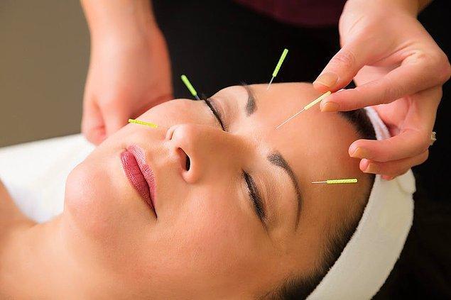 10. Akupunktur