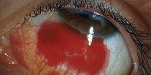 Son Sorusunu Görmeye Çalışırken Gözlerinizin Kanamasına Sebep Olacak Bergqvist Dikkat Testi