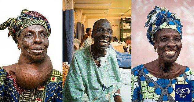 Bu kadının guatr ile başlayan rahatsızlığı ise yıllar geçtikçe daha da ciddileşmiş. Operasyondan sonraki mutluluğu görülmeye değer...