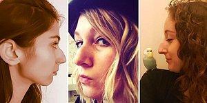 Beden Olumlama Hareketi Bu Kez Burunlar İçin! Sosyal Medyada Yan Profil Fotoğrafı Akımı