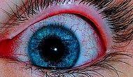 İnternet Aleminin Gördüğü En Sinir Bozucu Görsele Bakarken Gözleriniz Kanayacak!