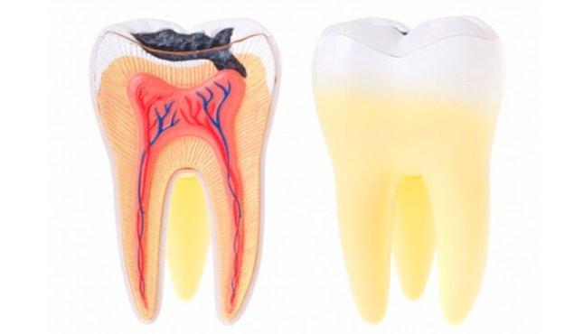 """Öncelikle ilacın etkili olduğu """"diş çürüğü"""" problemini anlayalım."""