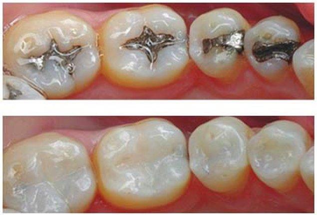 Diş hekimleri çürükleri temizleyerek dişleri amalgam (metal dolgu) veya kompozit (diş renginde dolgu) ile dolduruyorlar.