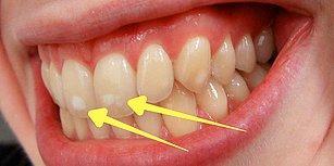 Bunu Hep Merak Ettiğinizi Şimdi Fark Edeceksiniz: Neden Bazı İnsanların Dişlerinde Beyaz Lekeler Vardır?
