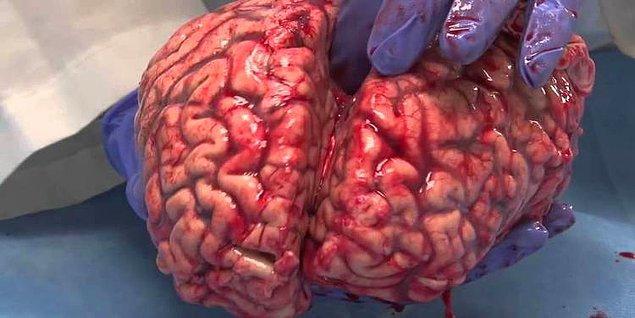 1. Sıradan bir beyin vücudun toplam ağırlığının %2'sini oluşturur, fakat vücudun toplam enerjisinin ve oksijen alımının %20'sini harcar.