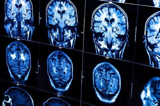 3. 90 dakika terlerseniz beyniniz geçici olarak, sanki 1 yıllığına yaşlanmışcasına büzüşür.