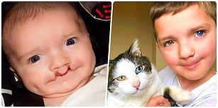 Farklı Göz Rengi ve Yarık Dudağı Sebebiyle Zorbalığa Maruz Kalan 7 Yaşındaki Madden'a Mutluluk Veren Yol Arkadaşı!