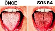 Diliniz Beyaz mı? İşte Bundan Kurtularak Daha Sağlıklı Bir Dile Sahip Olmanın Yolları