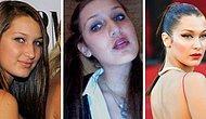 Umudunuzu Kaybetmeyin: Bella Hadid'in Estetik Öncesi Fotoğrafları İnterneti Altüst Etti