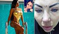 Gözlerinin Rengini Estetikle Değiştirmek İsterken Neredeyse Tamamen Kör Kalan Instagram Modeli