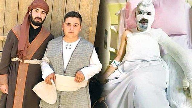 TRT için çekilen ve çekimleri Konya'da süren 'Bir Hadis Bir Film' dizisinin setinde oyuncu Muhammet Sinan Şenol ve sete koyun getiren çobanın 10 yaşındaki oğlu yanarak ağır yaralandı.