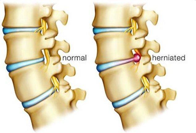11. Fıtık mı normal bir bel ağrısı mı?