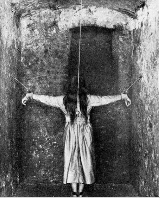 1900'lerde Fransa'da olan bir akıl hastanesinden alınmış bir görüntü. Hastanın tedavisi için bu şekilde tutulması uygun görülmüş.
