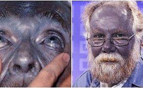 Gözlerinize İnanamayacaksınız! Mavi Tenleriyle Adeta Şirinler Köyü'nden Fırlamış Gibi Görünen Dünyanın En Garip Ailesi