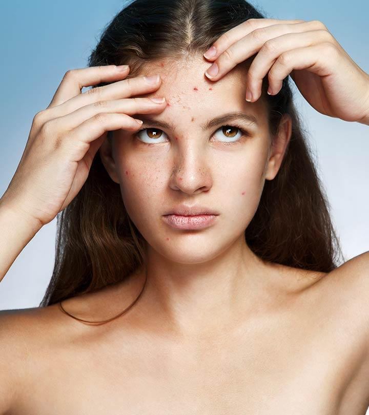 hard pimples causes treatment and more healthline - HD 1583×1593