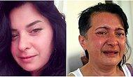 Beyazlatmak İstemişti: Dişlerini Çektirmesine Rağmen Ağrıları Dinmeyen Kadın 'Ötanazi' Yaptırmak İstiyor