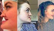 Çenesi ve Dişlerinin Görünümü Nedeniyle Hayatı Boyunca Zorbalığa Maruz Kalıp Ameliyat Olan Kadın