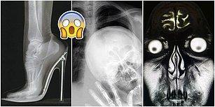 Tuhaflıklarını Görünce Küçük Dilinizi Yutma Noktasına Geleceğiniz 19 Garip Röntgen Filmi