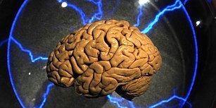 Bu Testin Tamamını Yalnızca IQ'su 150'nin Üzerinde Olanlar Çözebiliyor!