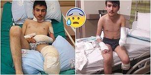İnşaatta Çalışırken Elektrik Akımına Kapılan ve Protez Bacağa İhtiyacı Olan Ali İçin 'AHBAP' Devreye Girdi!