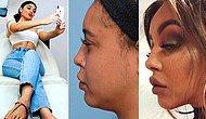 Güzellik Arzusu Nereye Gidiyor? Artık Moda Selfie'lerde İyi Görünmek İçin Estetik Yaptırmak