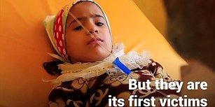 Kıtlığın Eşiğine Gelen Yemen'de Yüz Binlerce Çocuk Ölümle Burun Buruna Yaşıyor!