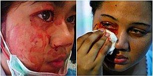 İçim Kan Ağlıyor Dedikleri Buymuş Meğer! Korku Filmlerinden Fırlamış Gibi Duran Bir Hastalık 'Hematidrosis'