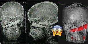 Kavga Sırasında Kafasından Bıçaklanıp Fark Etmeyen Adamın Tüyler Ürpertici Röntgen Görüntüleri