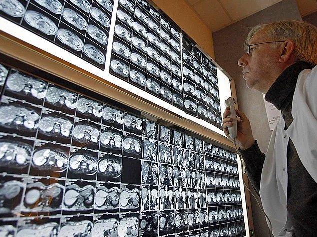 Sovyet Birliği döneminde yasaklanan Beatles cdleri tıp öğrencileri tarafından eski röntgen filmlerine kaydedildi.