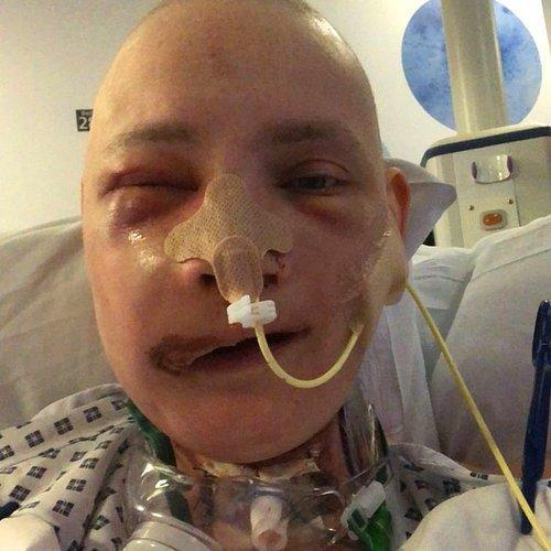 Geçirdiği Yüz Ameliyatından Sonra Yaşadıklarını Anlatan Kanser Hastası Genç Kadın 42