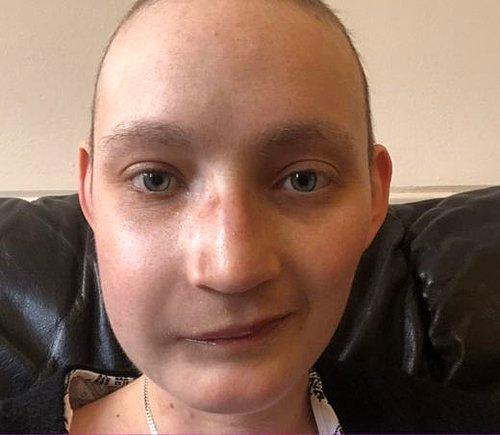 Geçirdiği Yüz Ameliyatından Sonra Yaşadıklarını Anlatan Kanser Hastası Genç Kadın 15