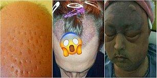 Bir Daha Düşünün! Saç Ektirme Operasyonu Yaptıranların Başına Gelen Kabus Gibi Olaylar