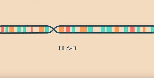 Sonradan anlaşıldı ki bu vakalar tesadüfi ortaya çıkmamıştı, bölgede yaşayan kadınların HLA B27 olarak adlandırılan geni mutasyona uğramıştı.