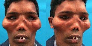 İnsanı Görme, Koklama ve Çiğneme Duyularından Mahrum Bırakan Aslan Surat Sendromundan Muzdarip Adam