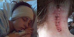 İki Yıldır Kendisini Sarhoş Gibi Hisseden Genç Kadında Beyincik Sarkması Hastalığı Olduğu Ortaya Çıktı!